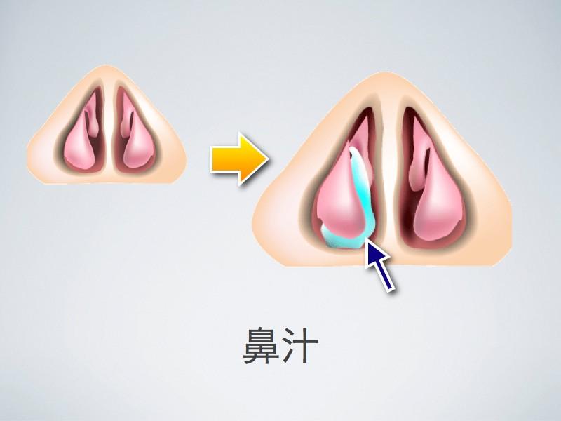鼻づまりの原因としての鼻汁_e0084756_9382475.jpg
