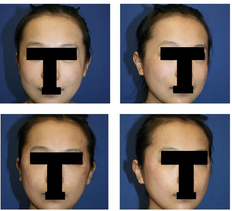 美容形成外科後遺症:頬骨アーチリダクション術後    頭部の冠状切開傷痕_d0092965_272933.jpg