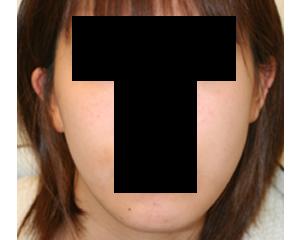 顎削り(顎骨切り)症例_c0193771_19375240.jpg