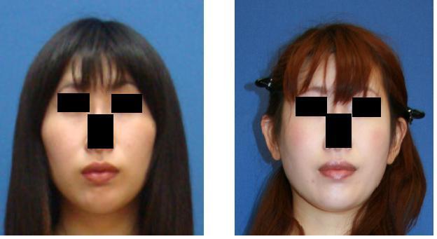 頬骨再構築法_d0092965_1555339.jpg