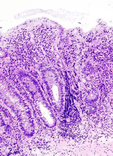 虫垂炎・腸間膜リンパ節炎による20歳以前の虫垂切除は、潰瘍性大腸炎発症を減らす_e0156318_19553861.jpg