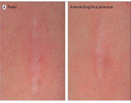 皮膚瘢痕治療:TGFβ3治療 第1相/2相試験_a0007242_8544623.jpg