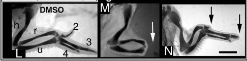 サリドマイドで手足の奇形が生じるメカニズム_c0025115_2026359.jpg