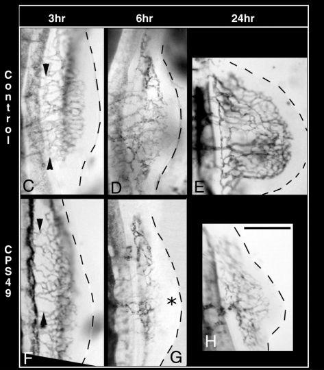 サリドマイドで手足の奇形が生じるメカニズム_c0025115_2051172.jpg