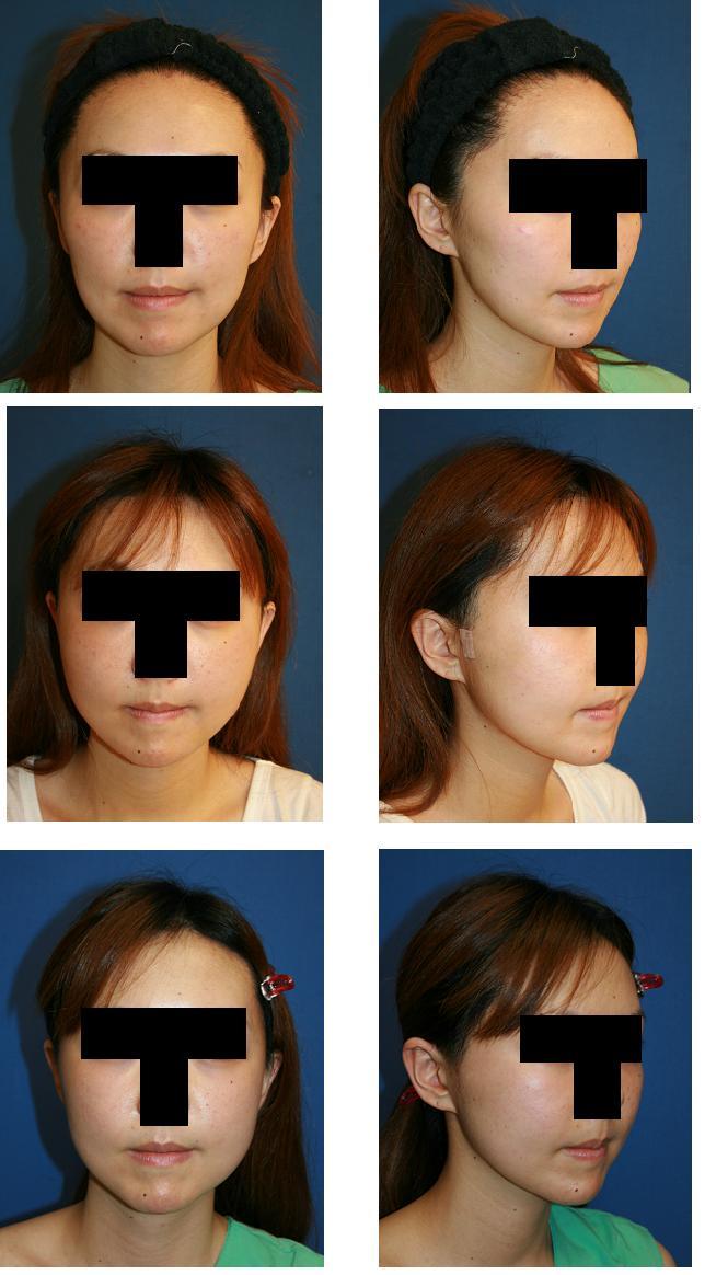 頬骨再構築法、頬骨前方削り、エンドタインリフト、顎下脂肪吸引_d0092965_154878.jpg