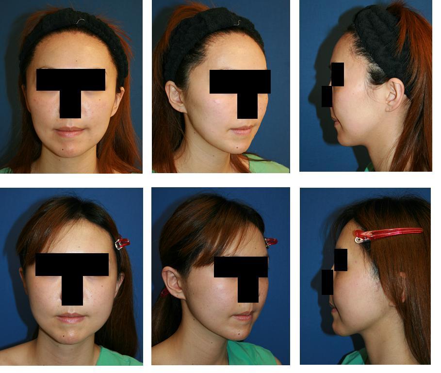 頬骨再構築法、頬骨前方削り、エンドタインリフト、顎下脂肪吸引_d0092965_16143.jpg