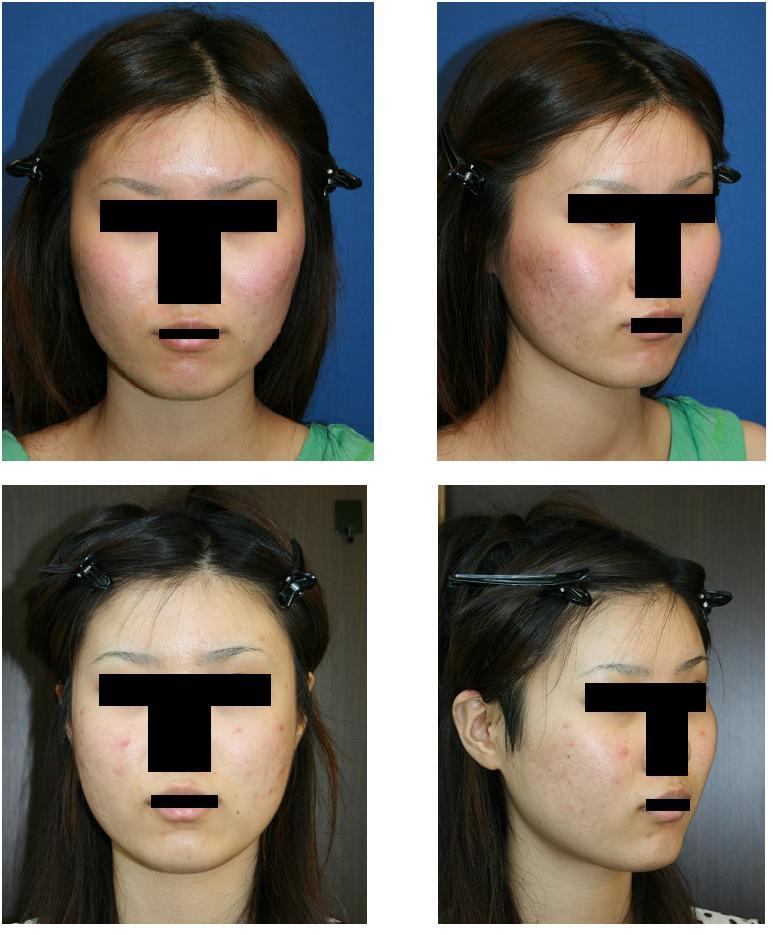 頬骨再構築法術後2ヵ月_d0092965_044429.jpg