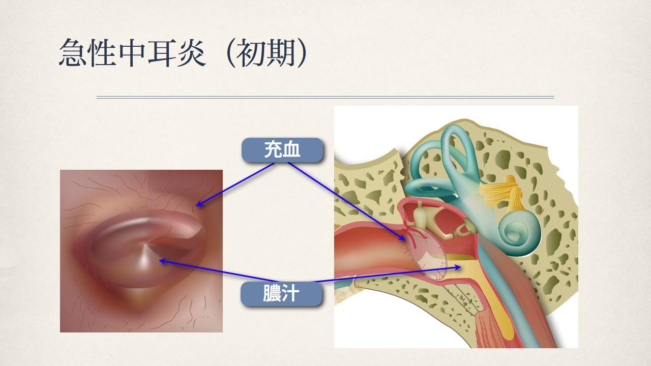 鼓膜で分かる中耳の状態(正常な鼓膜、急性中耳炎の時の鼓膜)_e0084756_8343756.jpg