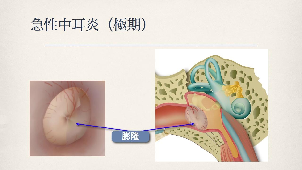 鼓膜で分かる中耳の状態(正常な鼓膜、急性中耳炎の時の鼓膜)_e0084756_8344988.jpg