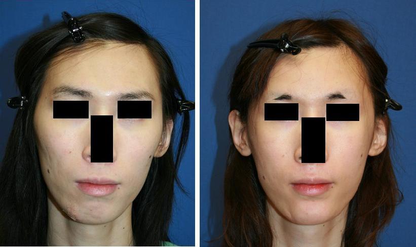 眉骨削り、額アパタイト形成術、 頬骨再構築法、わし鼻修正術、顎プロテーゼ留置術_d0092965_2335191.jpg