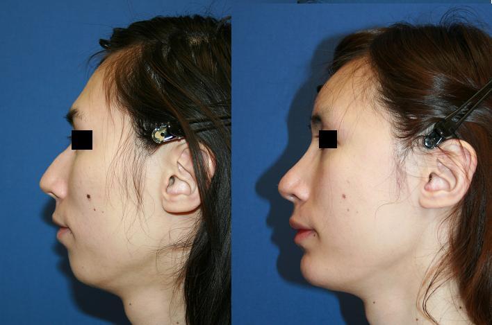 眉骨削り、額アパタイト形成術、 頬骨再構築法、わし鼻修正術、顎プロテーゼ留置術_d0092965_2335974.jpg