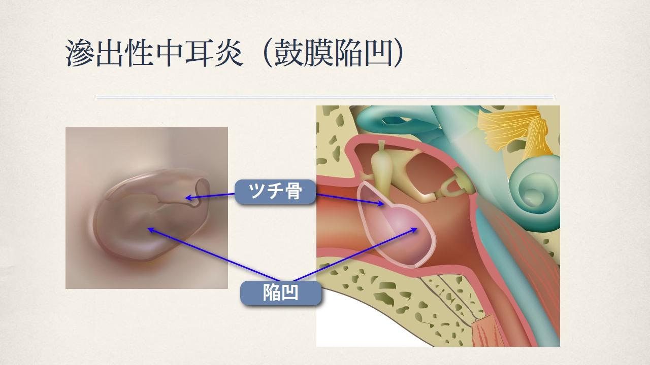 鼓膜で分かる中耳の状態(滲出性中耳炎の鼓膜)_e0084756_18192680.jpg