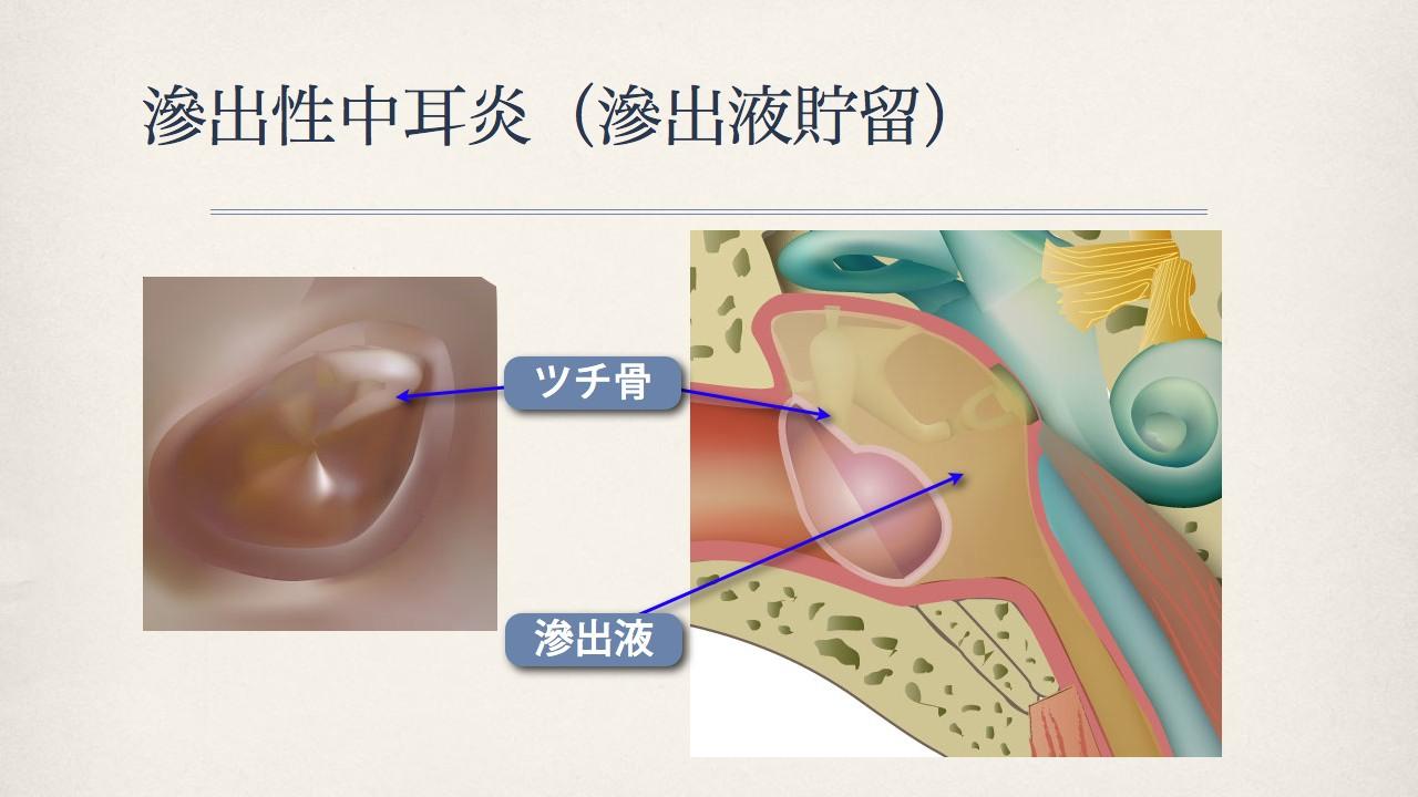 鼓膜で分かる中耳の状態(滲出性中耳炎の鼓膜)_e0084756_18193715.jpg