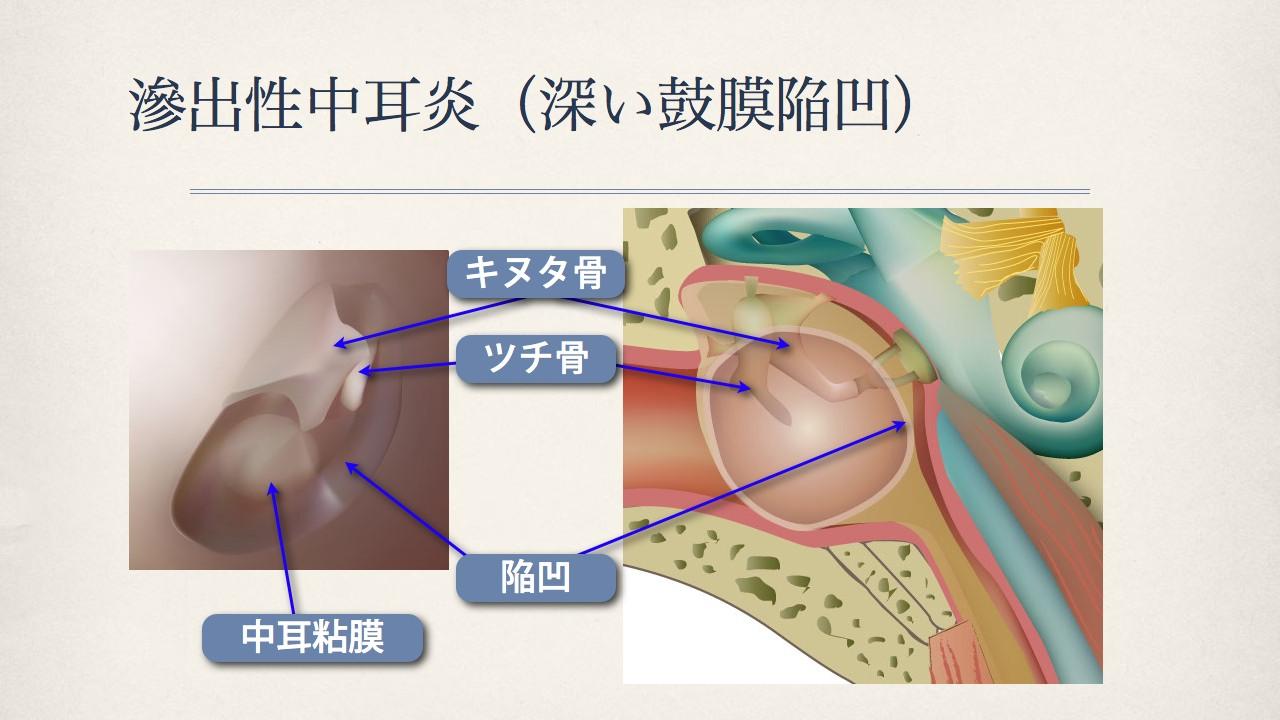 鼓膜で分かる中耳の状態(滲出性中耳炎の鼓膜)_e0084756_18195768.jpg
