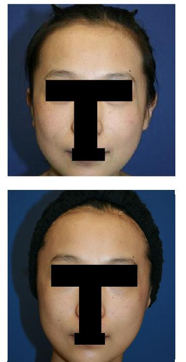 美容外科後遺症:頬骨アーチリダクション(頬骨弓前後骨切り術) 術後_d0092965_22384055.jpg