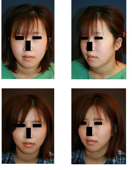 ミニリフト、頬、顎下脂肪吸引_d0092965_235455100.jpg