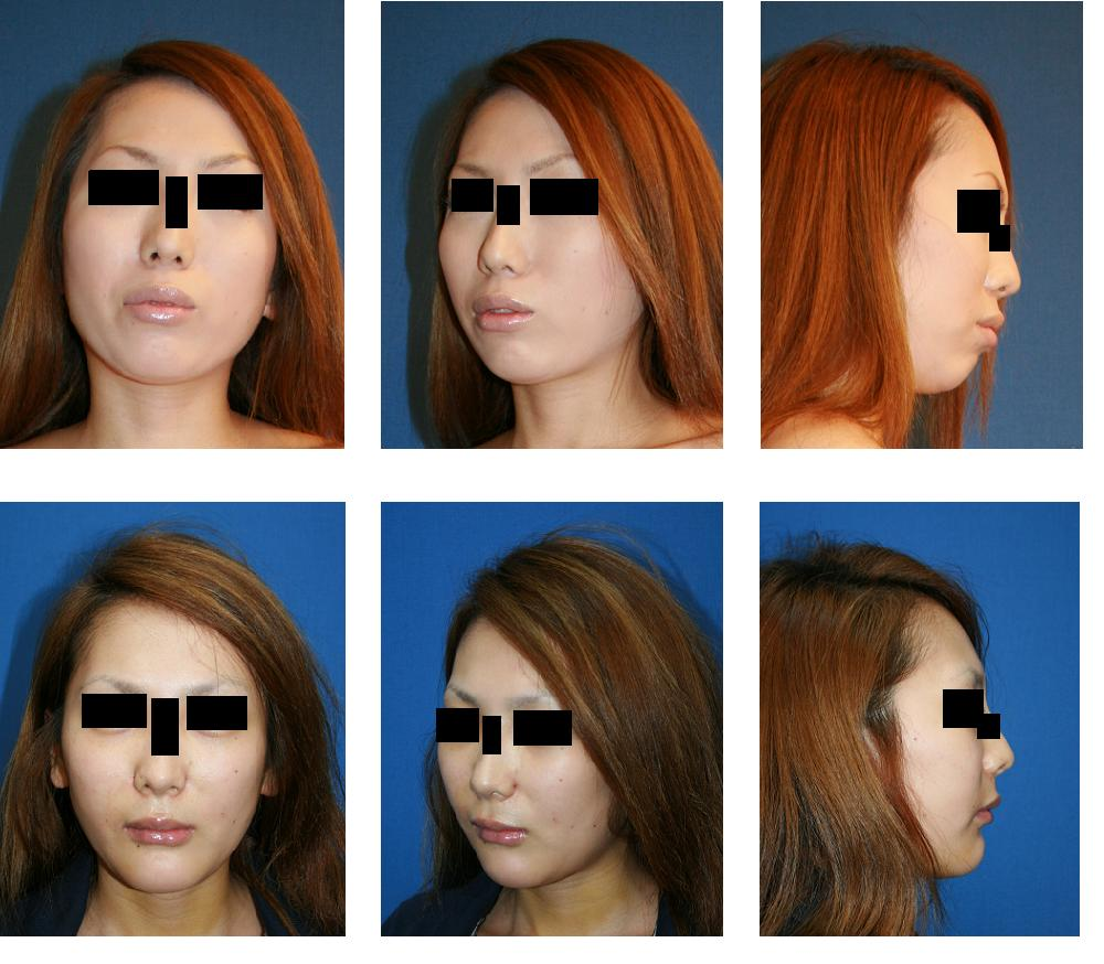 上顎、下顎同時セットバック(歯槽骨骨切り後方移動術)、顎先骨切り前方移動術_d0092965_137376.jpg