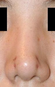 プロテーゼ抜去+鼻尖整形 術後3週間目_c0193771_21265764.jpg