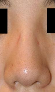 プロテーゼ抜去+鼻尖整形 術後3週間目_c0193771_13195418.jpg