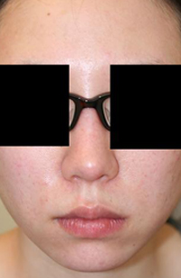 隆鼻術(I型プロテーゼ)+鼻尖整形+顎プロテーゼ 術後1ヶ月目_c0193771_13242282.jpg