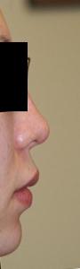 隆鼻術(I型プロテーゼ)+鼻尖整形+顎プロテーゼ 術後1ヶ月目_c0193771_13243344.jpg