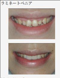 審美的な歯科治療 ラミネートベニア修復 マイクロスコープ東京職人歯医者_e0004468_9532315.jpg