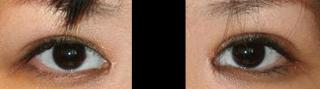 目頭切開+脂肪取り二重 術後1ヶ月目_c0193771_2365824.jpg