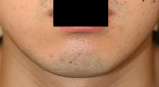 顎削り 術後2ヶ月目_c0193771_13263156.jpg