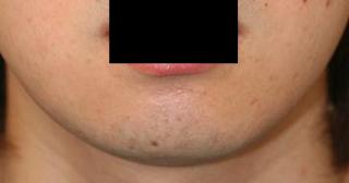 顎削り 術後2ヶ月目_c0193771_13264465.jpg