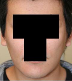 頬骨削り+顎削り 術後2ヶ月目_c0193771_1562863.jpg