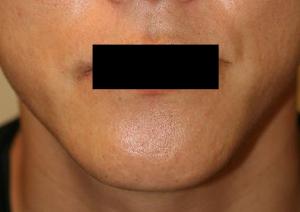 オトガイ骨切(顎削り) 術後1ヶ月目_c0193771_15543295.jpg