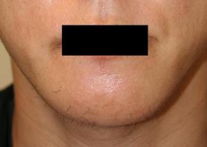 オトガイ骨切(顎削り) 術後1ヶ月目_c0193771_15545135.jpg