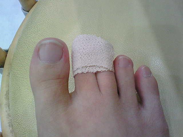 足の指をポッキリ。_f0107578_17293764.jpg
