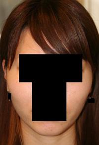 頬骨削り(再構築法) 術後1ヶ月目_c0193771_18495541.jpg