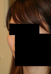 頬骨削り(再構築法) 術後1ヶ月目_c0193771_18501126.jpg