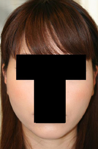 頬骨削り(再構築法) 術後1ヶ月目_c0193771_18502619.jpg