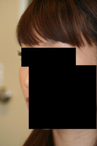 頬骨削り(再構築法) 術後1ヶ月目_c0193771_18503713.jpg