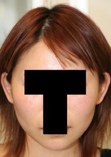 頬骨削り+バッカルファット摘出 術後6ヶ月目_c0193771_17384176.jpg