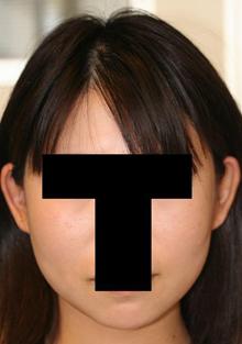 頬骨削り+バッカルファット摘出 術後6ヶ月目_c0193771_17385870.jpg