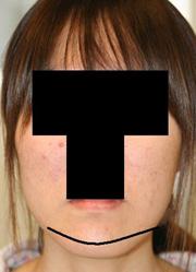 顎削り(オトガイ骨切り) 術後1ヶ月目_c0193771_14205351.jpg