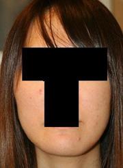 顎削り(オトガイ骨切り) 術後1ヶ月目_c0193771_14212943.jpg