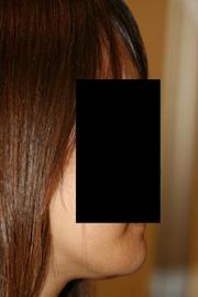 顎削り(オトガイ骨切り) 術後1ヶ月目_c0193771_14214019.jpg