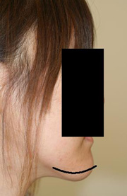 顎削り(オトガイ骨切り) 術後1ヶ月目_c0193771_1421862.jpg