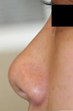 鼻尖整形+耳介軟骨移植 術後4ヶ月目_c0193771_14252261.jpg