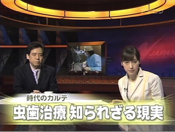 フジテレビ 時代のカルテ マイクロスコープ顕微鏡歯科治療 東京職人歯医者のはかない思い出_e0004468_12274777.jpg