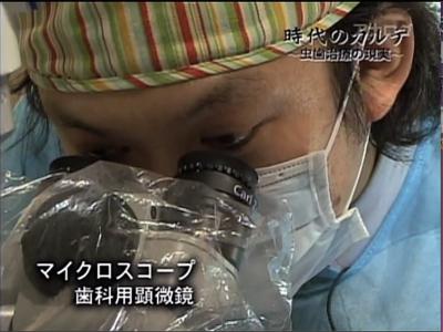 フジテレビ 時代のカルテ マイクロスコープ顕微鏡歯科治療 東京職人歯医者のはかない思い出_e0004468_12583681.jpg