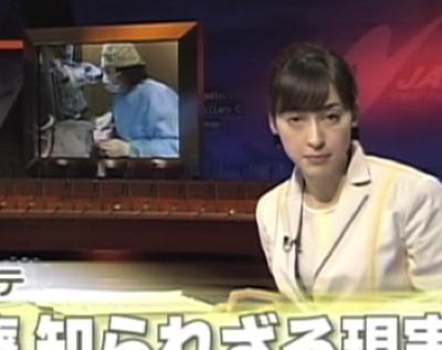 フジテレビ 時代のカルテ マイクロスコープ顕微鏡歯科治療 東京職人歯医者のはかない思い出_e0004468_1323066.jpg