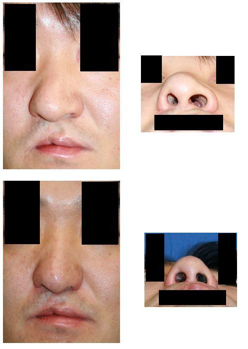 斜鼻変形修正術、鼻根縮小術、小鼻縮小術_d0092965_22334853.jpg
