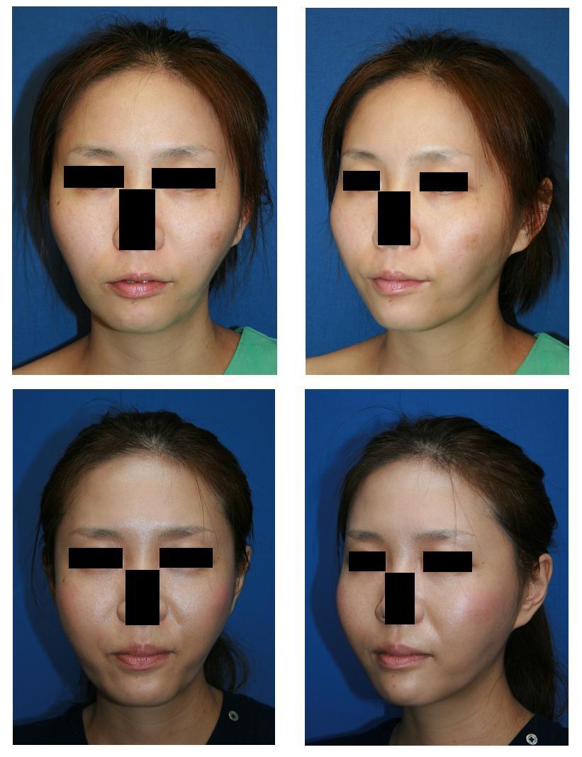頬骨再構築、ミニリフト、頬脂肪移植、他院エラ骨骨削り術後修正術_d0092965_23345631.jpg