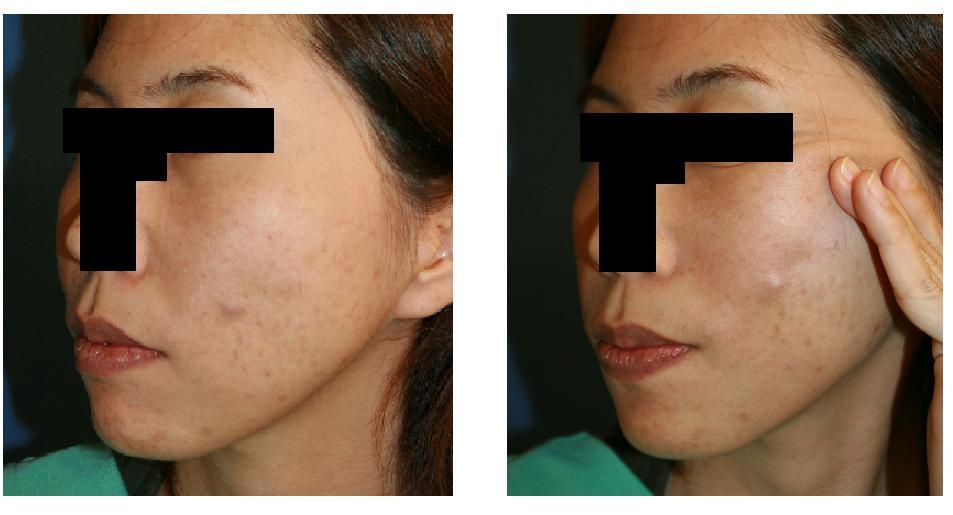 美容外科後遺症:ケーブルリフト後感染_d0092965_0522321.jpg